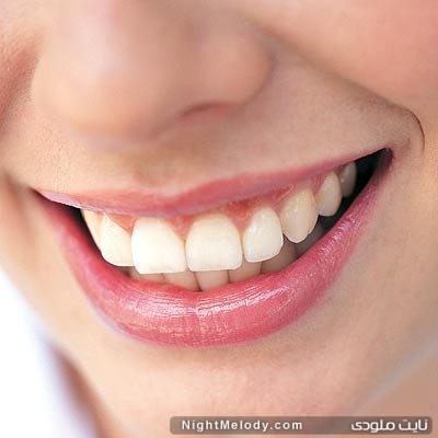 چگونه دندان سفید داشته باشیم ؟