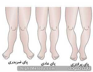 آیا کودک شما پای پرانتزی دارد؟