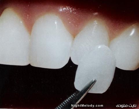 دندان سفید