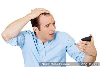 ریزش موی آقایان و راه های جلوگیری از آن