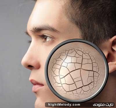 نسخه طب سنتی برای رفع خشکی پوست